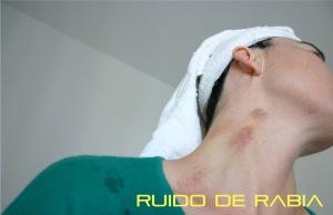 Ruido de Rabia 02