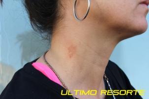 Silvia Resorte2