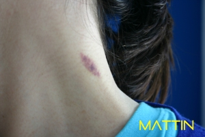chupón_mattin